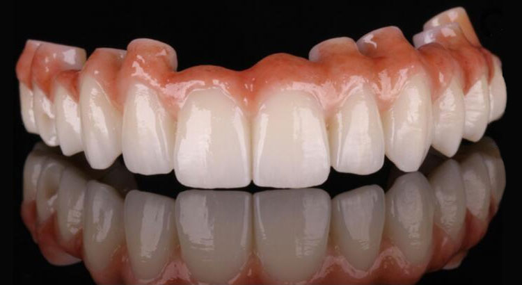 Ceramic Non-Metal Dental Bridge