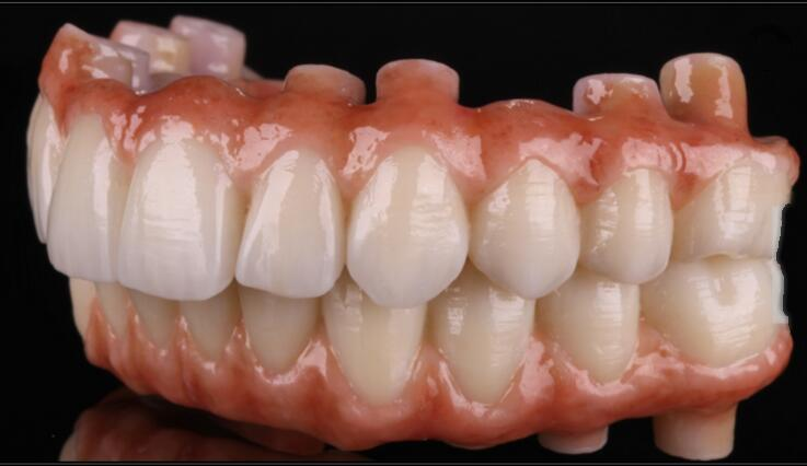 Dental Implants all Porcelain Bridge