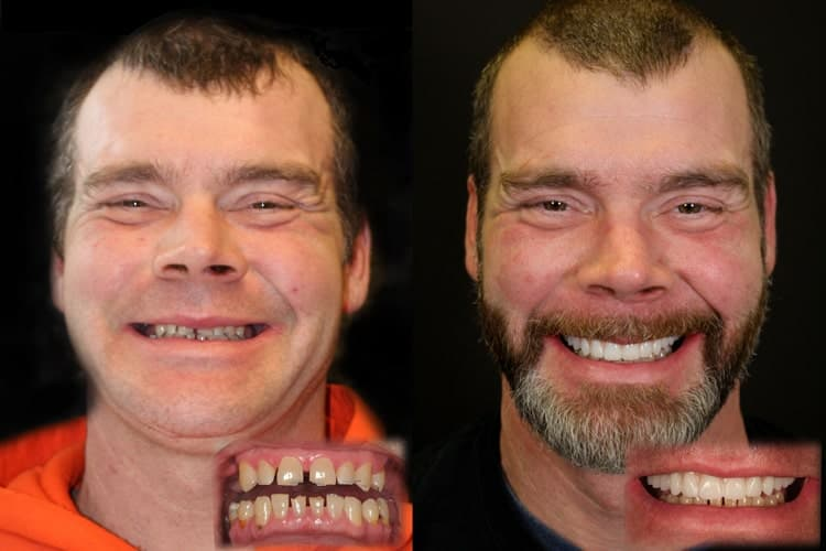 Carl who is an actual Same Day New Smile™ patient