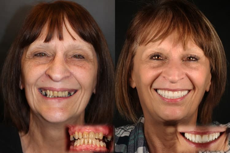 Shirley who is an actual Same Day New Smile™ patient